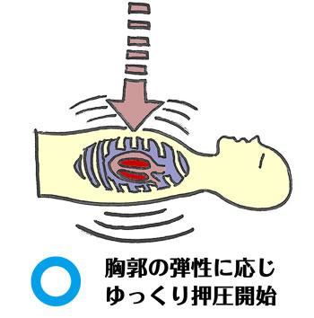 胸郭の弾性に応じゆっくり押圧開始